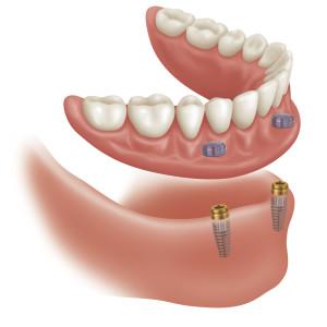 implanturi2