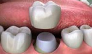 protectia dentara2